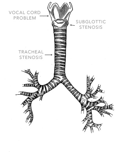 Anatomy Carina Trachea Wiring Diagram And Engine Diagram